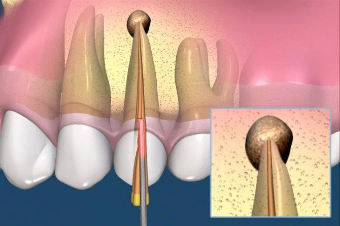 Endodontie. Tratamentul endodontic.