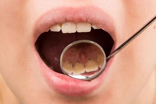 De ce apar pete negre/puncte colorate pe dinti?